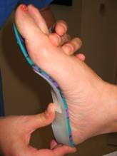 prefabricated orthotics high arched foot