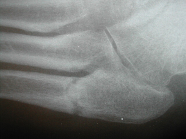 Stress Fracture Foot Pain