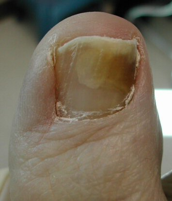 Self treatment for thick fungal nails