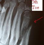 fifth metatarsal shaft fracture