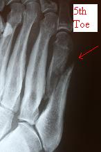 5th metatarsal shaft fracture