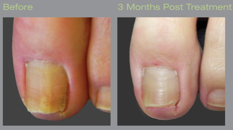 Laser treatment for toenail fungus before and after images