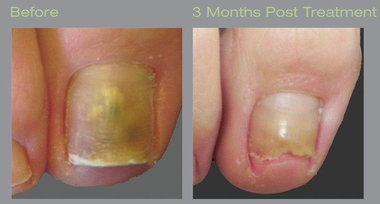 Laser treatment for toenail fungus before and 3 months post treatment