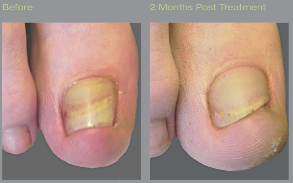 fungus treatment with laser