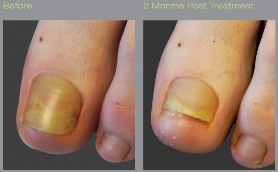 laser for ugly toenails
