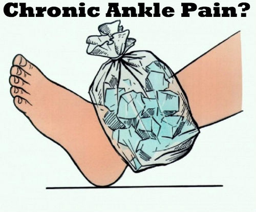 Ankle Arthritis or Chronic Ankle Pain?