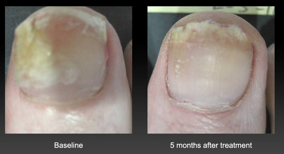 nail treatment for fungus
