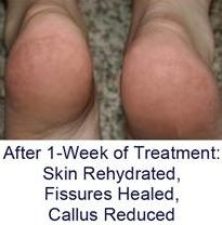 cracked heels fissures after treatment