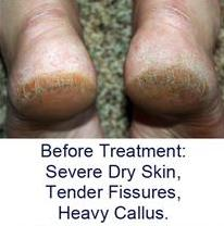 cracked heels fissures before treatment