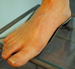 flat feet over weight