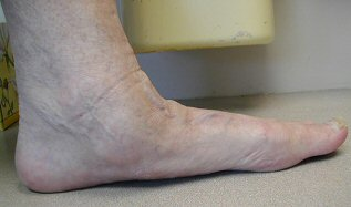 flat foot posterior tibial dysfunction