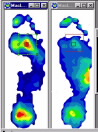 foot scan orthotic