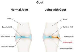 gout treatment seattle wa