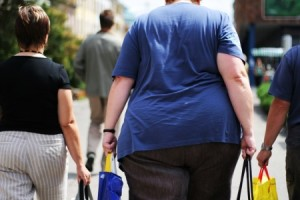 heel pain obesity