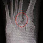 lisfranc fracture