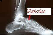 navicular stress fracture treatment prevention