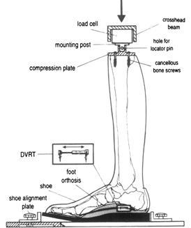 orthotic study
