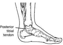 posterior tibial tendonitis
