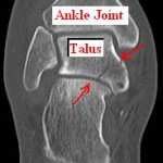 talus fracture foot injury