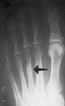 third metatarsal stress fracture