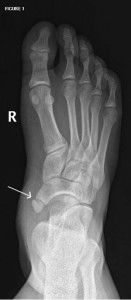 accessory navicular bone
