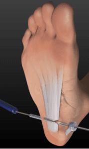 Endoscopic plantar fascial release Arthrex