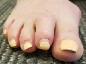 elevation toe plantar plate